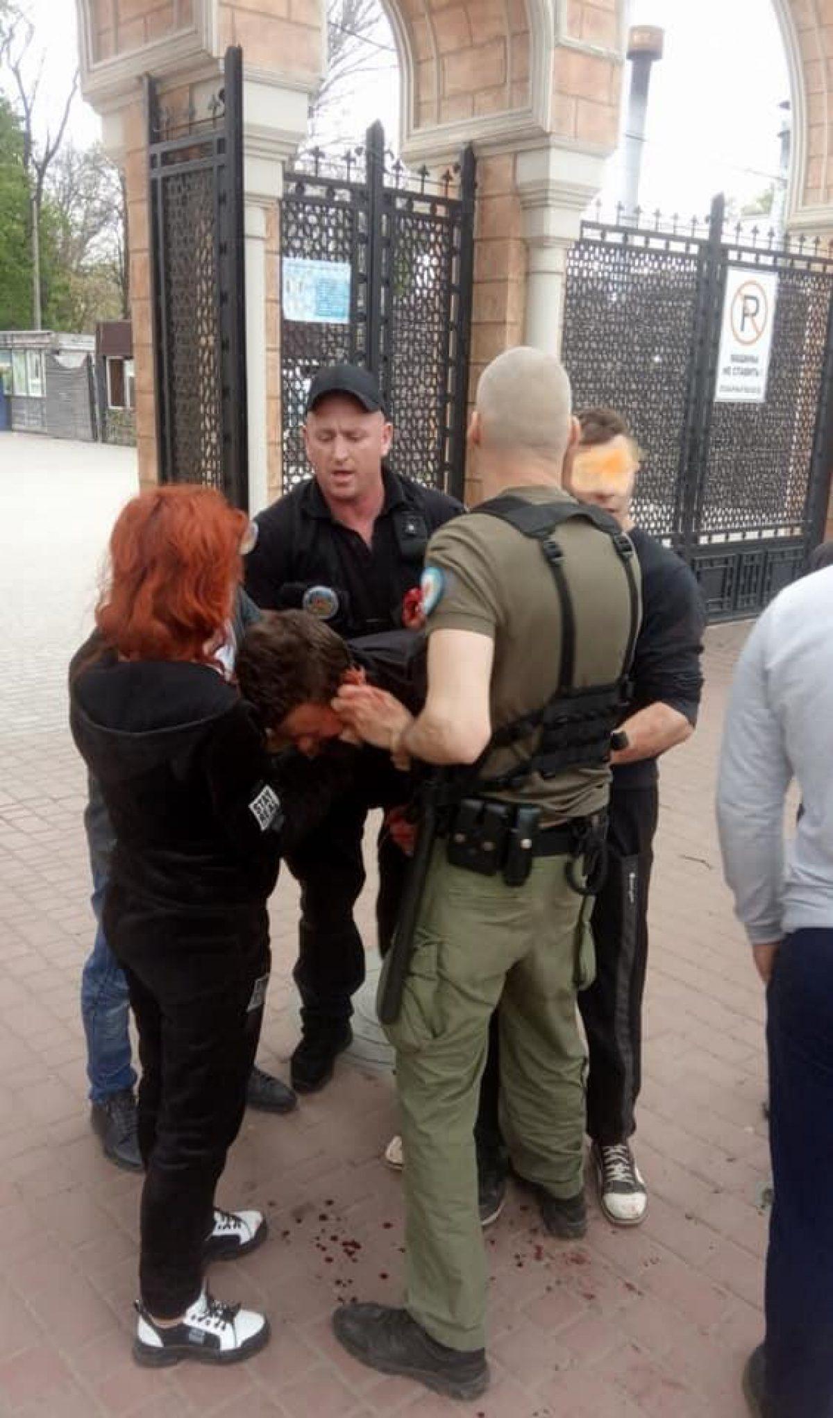 В центре Одессы произошла массовая драка: одному из участников порезали лицо