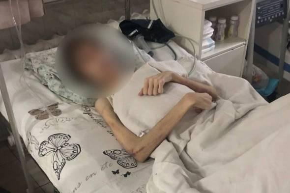 В Одессе отец довёл 16-летнего сына до веса в 30 кг, заставляя поститься, чтобы спастись от бесов